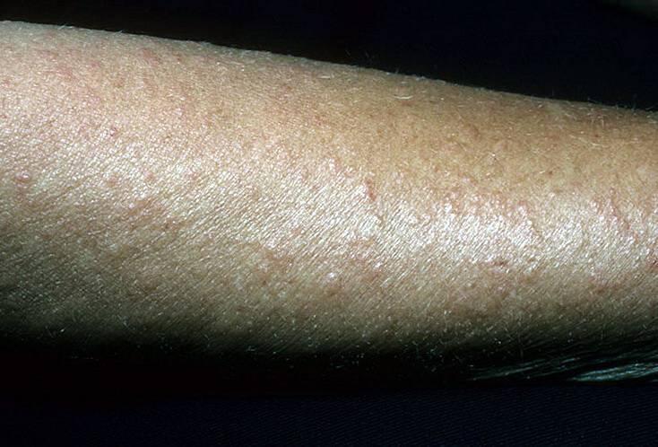 солнечный дерматит у детей