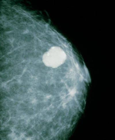 фиброаденома молочной железы и эко