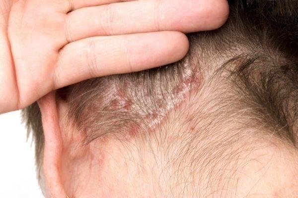 Демодекоз волосистой части головы: симптомы, лечение