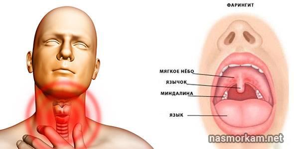 Как лечить народными средствами рак горла
