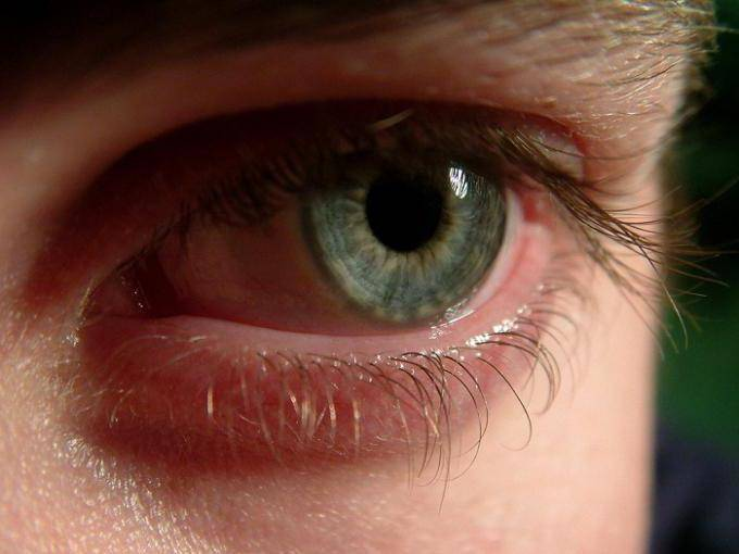 Черви в глазах