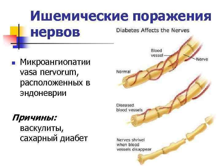 хроническая демиелинизирующая полинейропатия