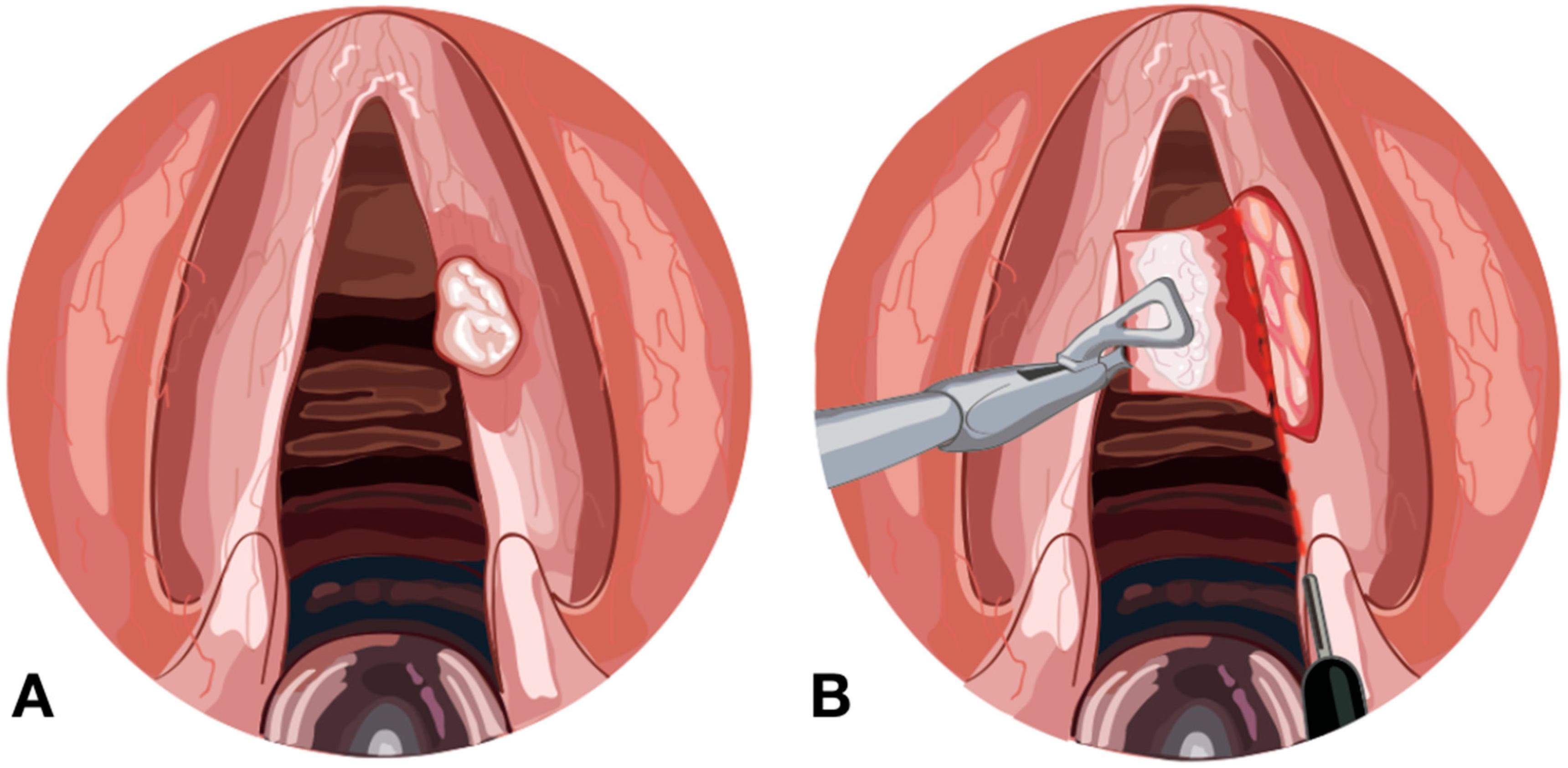 Папиллома на миндалине: причины возникновения, симптомы, лечение