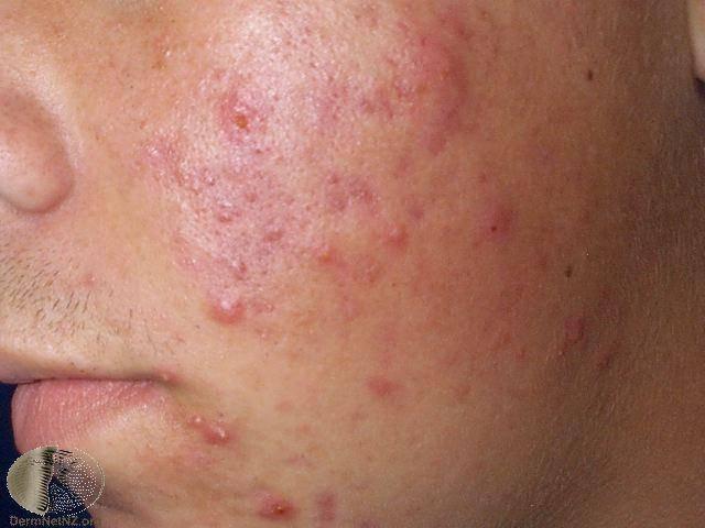 Псориаз на лице — признаки, симптомы, диагностика, лечение и профилактика