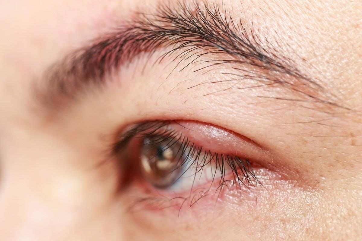 герпес глаза лечение