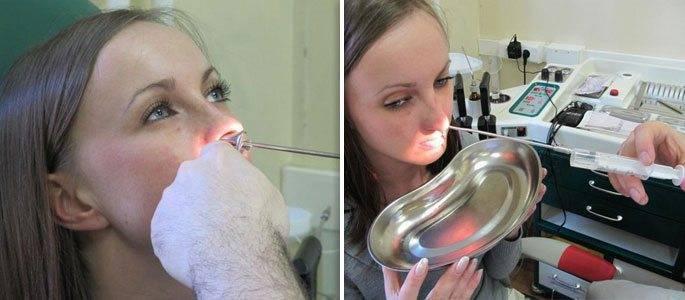 Прокол носа при гайморите: плюсы и минусы процедуры