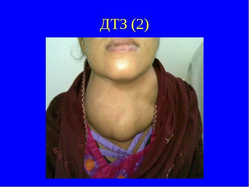 Диффузный токсический зоб щитовидной железы