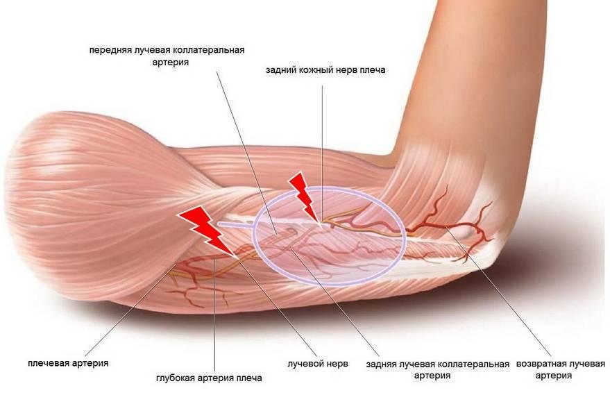 Невропатия лучевого нерва: причины, симптомы и лечение воспаления