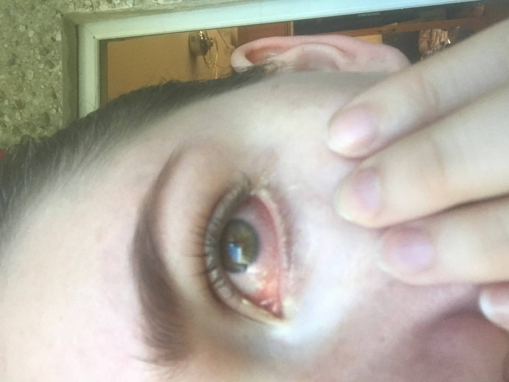 глаз красный и слезится