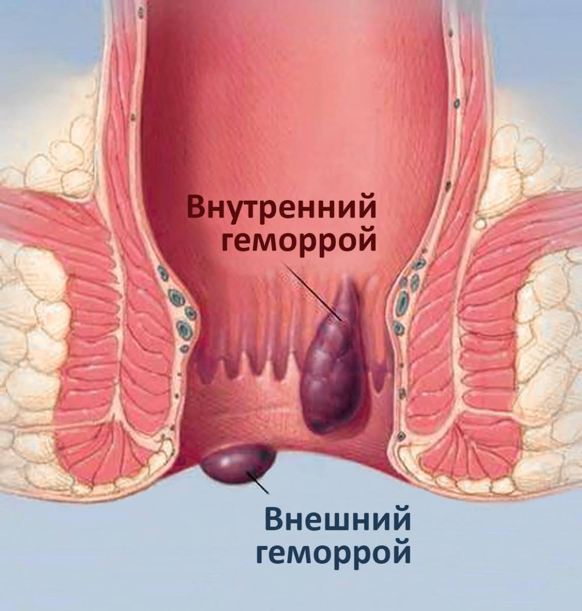 Хронический геморрой: причины, симптомы, лечение