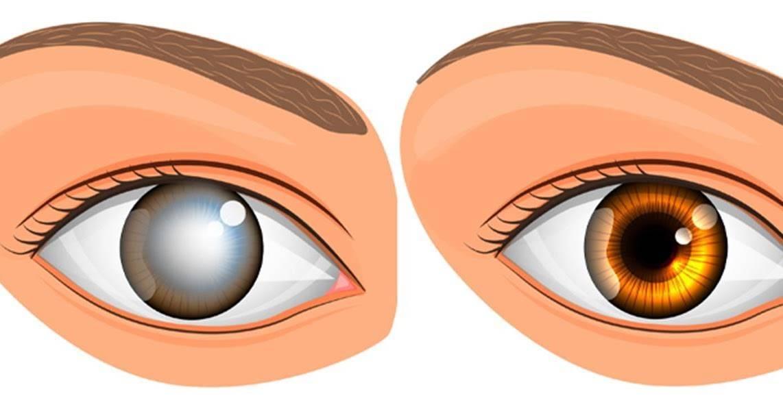 ухудшение зрения в сумерках