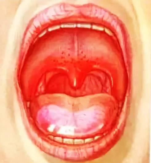 Болит горло у грудничка: что делать?