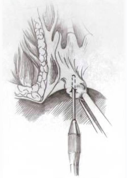 Операция по удалению геморроя: хирургические методы, цена и отзывы