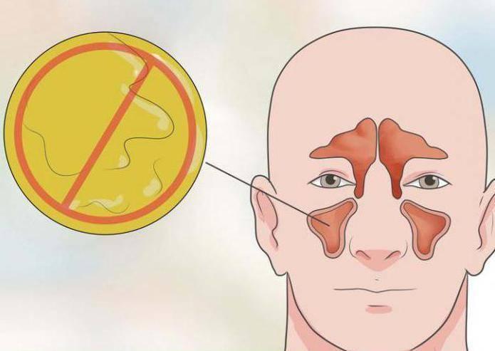 Чем ринит отличается от синусита
