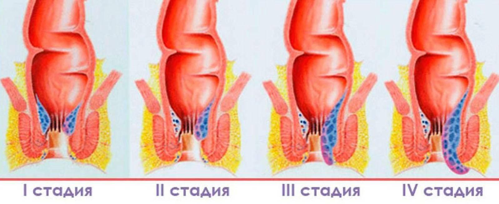 Основные симптомы и особенности лечения геморроя 2 степени