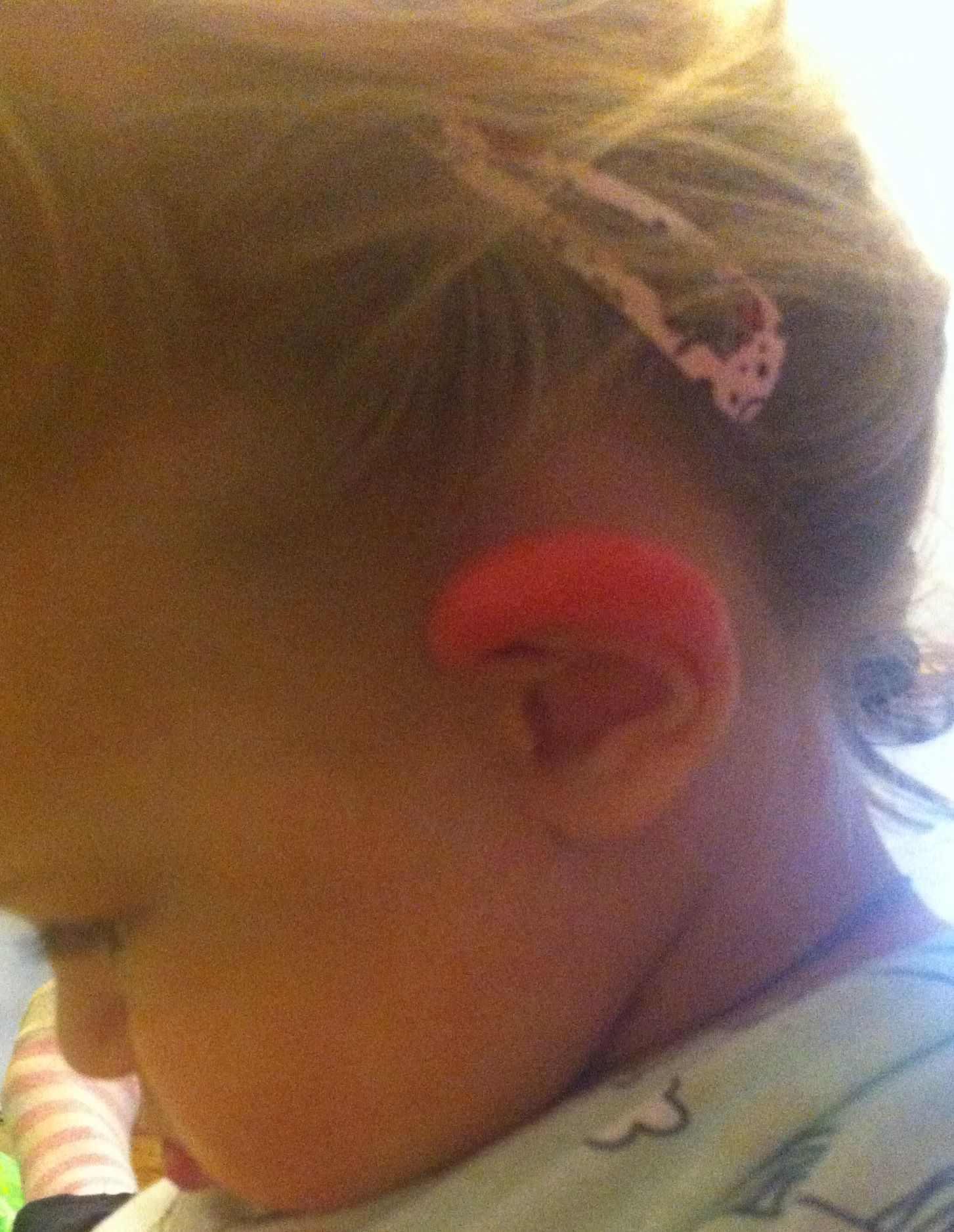 Ребенка красное ухо внутри. что делать, если у ребенка опухло и покраснело ухо снаружи, а ушная раковина горячая: причины и лечение