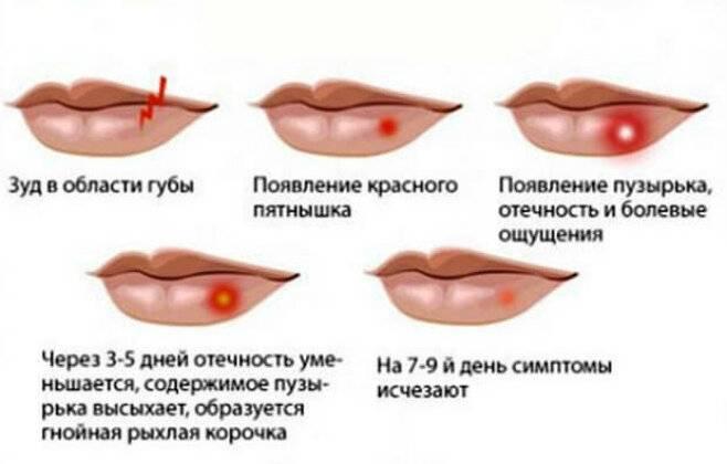 Как вылечить герпес навсегда и можно ли избавиться от герпетической инфекции