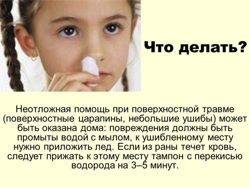 Перелом носа у ребенка: симптомы и признаки