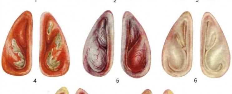 Гипертрофический ринит: причины, симптомы и лечение заболевания