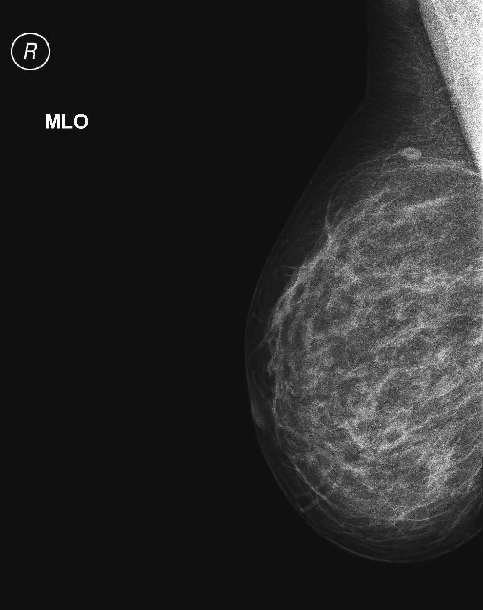 Что лучше: маммография или узи молочных желез?