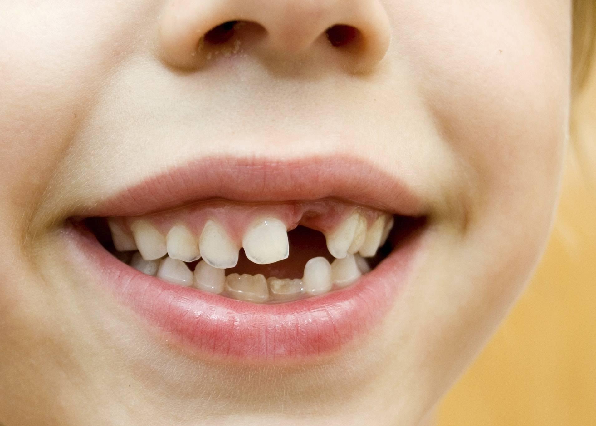 у ребенка криво растут молочные зубы