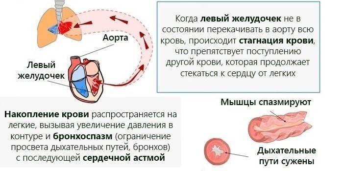сердечный кашель народные средства