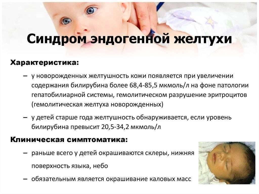 Фототерапия при желтухе новорожденных: лечение в домашних условиях, эффективность