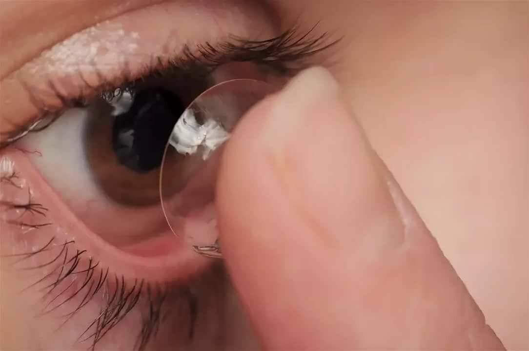 Уход за контактными линзами — основные правила хранени и ухода