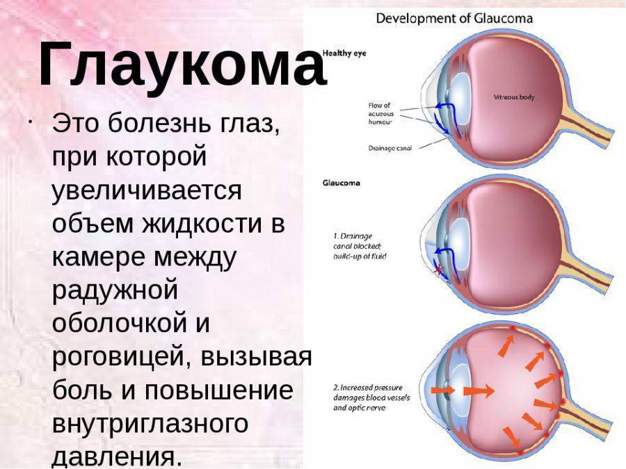Лечение глаукомы народными методами – 8 способов