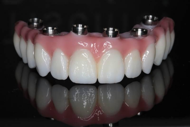 Виды и типы конструкций несъемных зубных протезов
