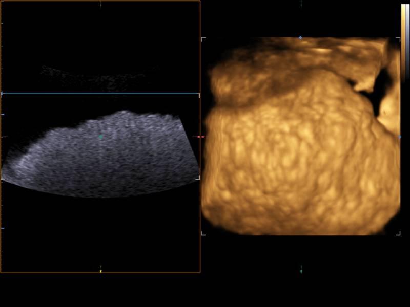 Видно ли цирроз печени на узи? признаки и пример описания