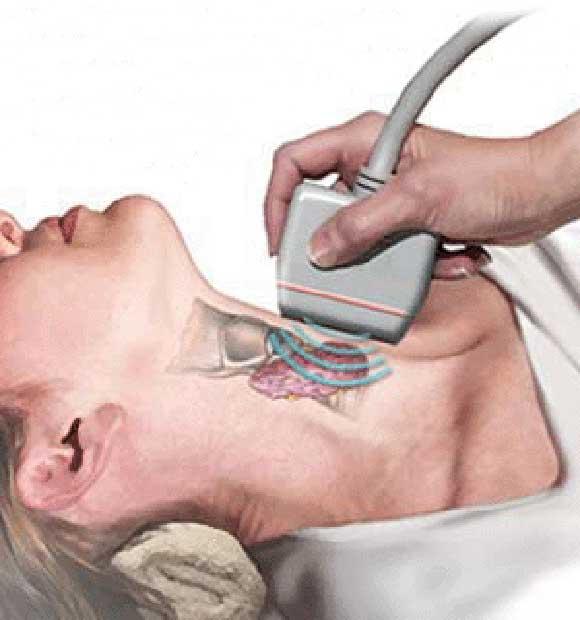 Подготовка к узи щитовидной железы: когда назначается, как подготовиться к исследованию (у женщин, мужчин, детей)