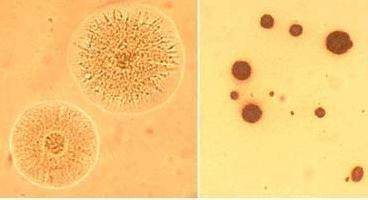 Откуда в организме берется уреаплазма и к чему может привести заболевание?