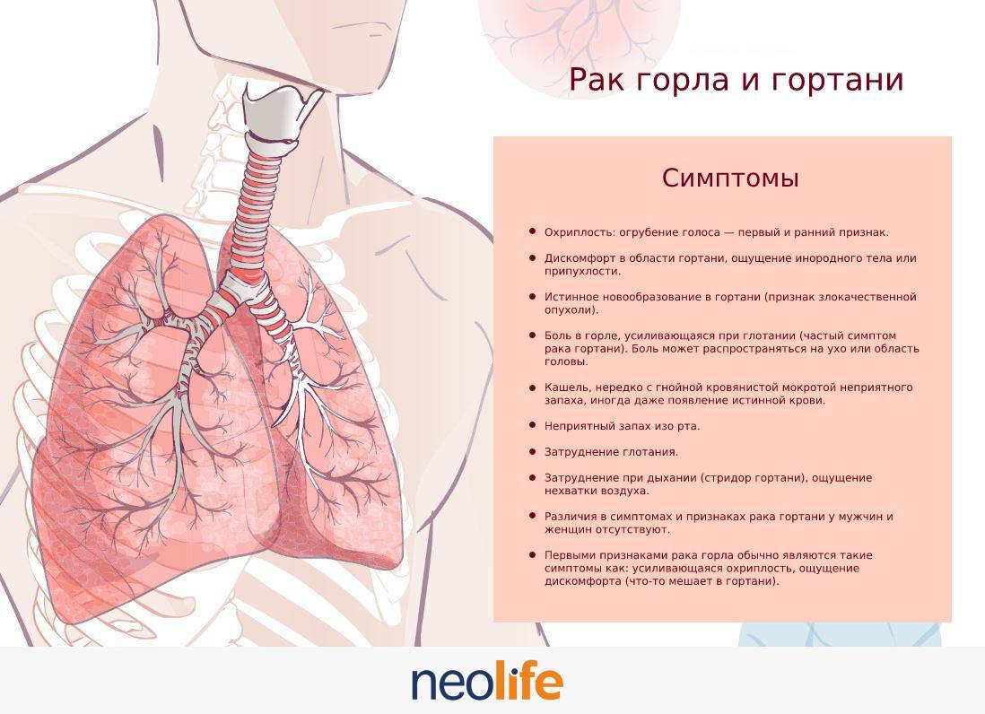 Причины рака горла у мужчин
