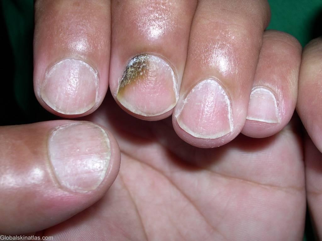 Лечение псориаза ногтей пальцев рук: основные медикаментозные препараты