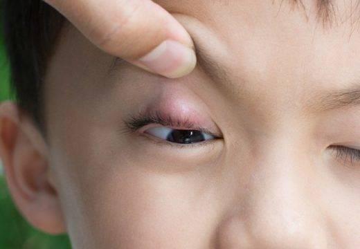 чирей на глазу лечение