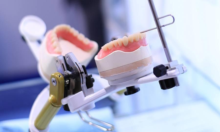 Как проходит процесс изготовления зубного протеза?