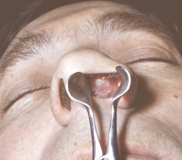 Виды операций по удалению полипов в носу