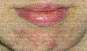 Герпес на подбородке: причины появления, лечение (видео и фото)