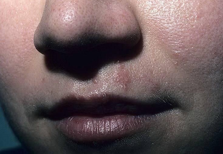 герпес на лице при беременности