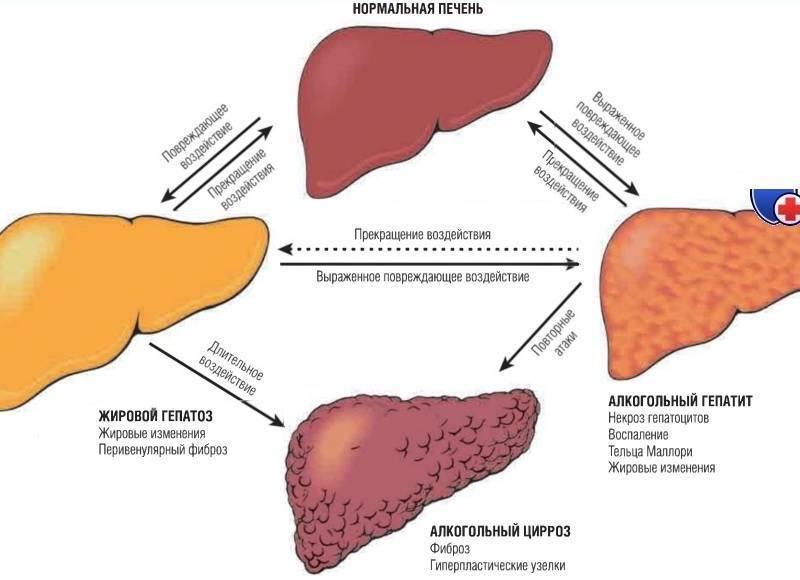 Прием алкоголя при гепатите с и после лечения