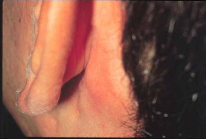 увеличен лимфоузел за ухом у ребенка