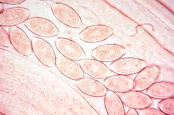 Капилляриоз кишечника