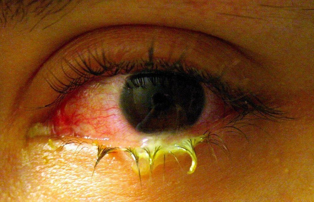 красные глаза после купания