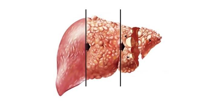 Как люди умирают от рака легких?