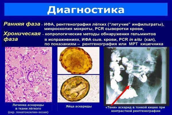 Эхинококкоз. причины, симптомы, современная диагностика и эффективное лечение