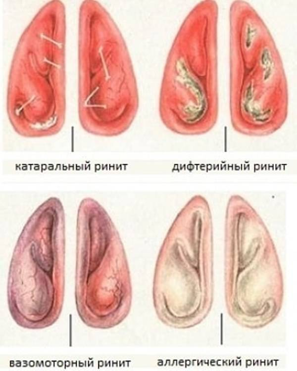 Симптомы и лечение гипертрофического ринита и его форм