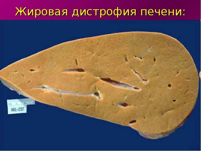 Токсическая дистрофия печени — большая медицинская энциклопедия