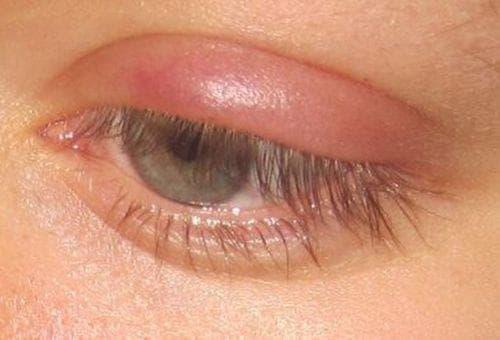 боль при надавливании на глазное яблоко