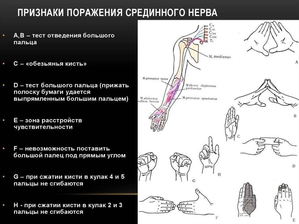 невропатия лучевого нерва лечение
